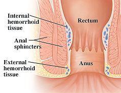 Hemorrhoidal Tissue Image
