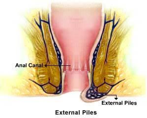 External Hemorrhoids Image